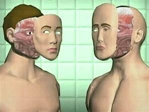 transplant facial