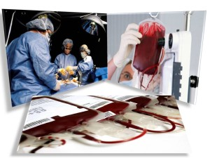 laser sange - medici