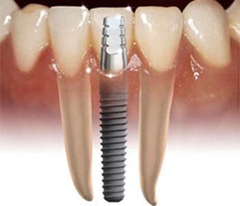 implant_dentar_schematic