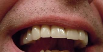 exclusivenews_implant dentar