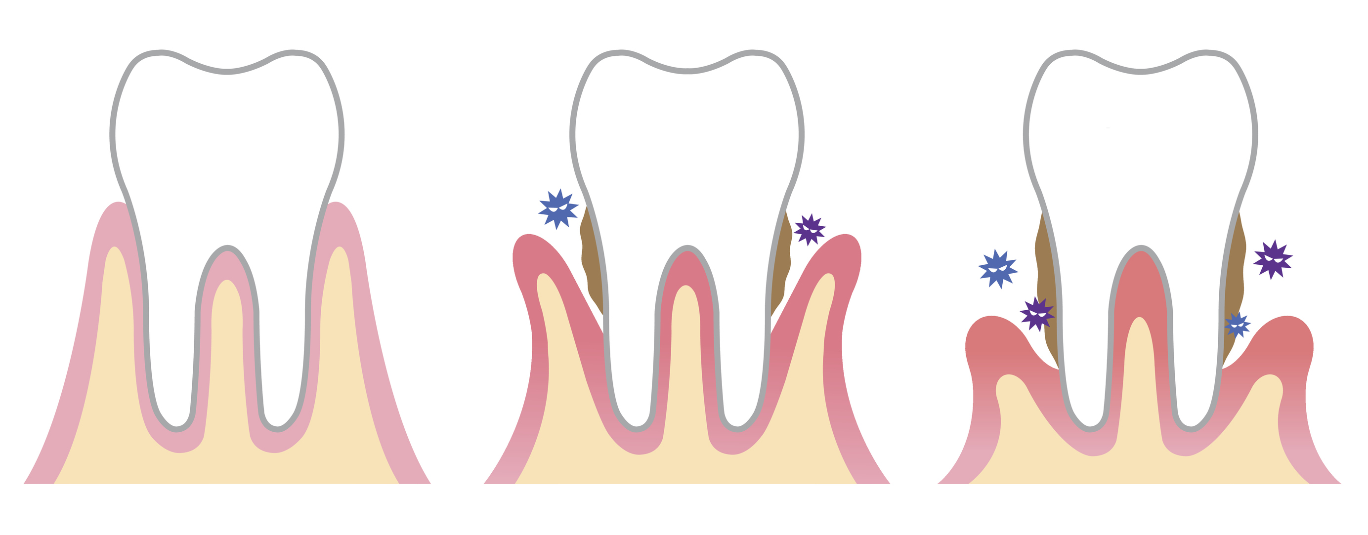 periodontal disease affect the bone that surrounds and supports teeth. plaque build up and the bacteria infect not only your gums and teeth, but eventually the bone that support the teeth.